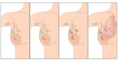 De viktigste årsakene til brystkreft