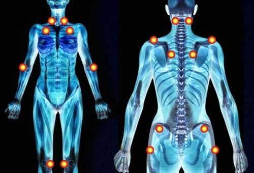 Lindre fibromyalgi ved hjelp av medisinske urter