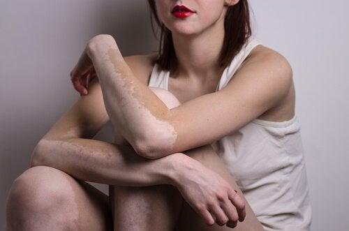 1-vitiligo-armer