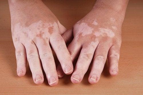 5 hjemmeremedier for vitiligo