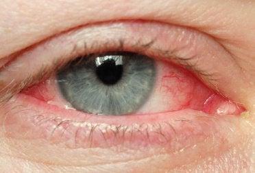 2-irritert-øye