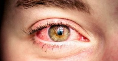 5-rødt-øye