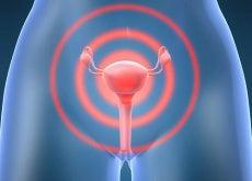 5 typer gynekologisk kreft