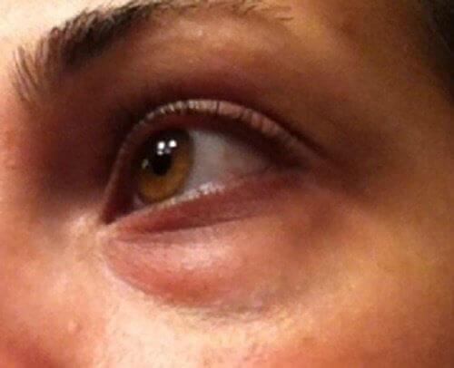 Hvordan behandle ringer under øynene naturlig