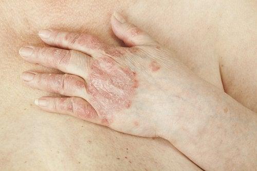 Psoriasis kan forårsake kløe i underlivet