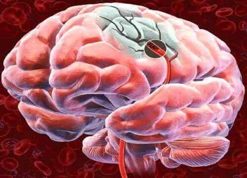 Oppdag 5 måter å øke blodtilførselen til hjernen på