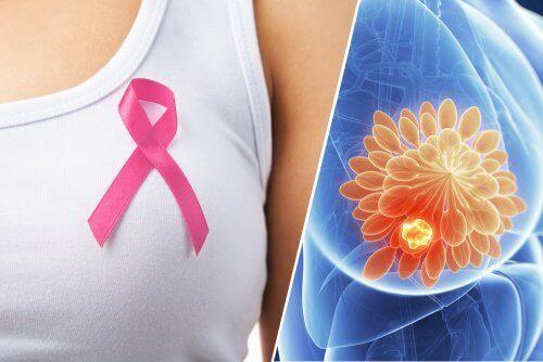 10 tegn på brystkreft