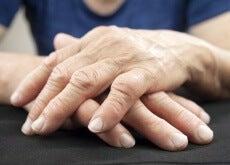Koblingen mellom leddsmerter og tarmbakterier
