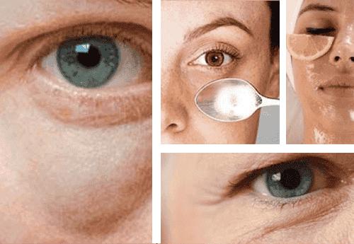 Enkle tips for å bekjempe poser under øynene