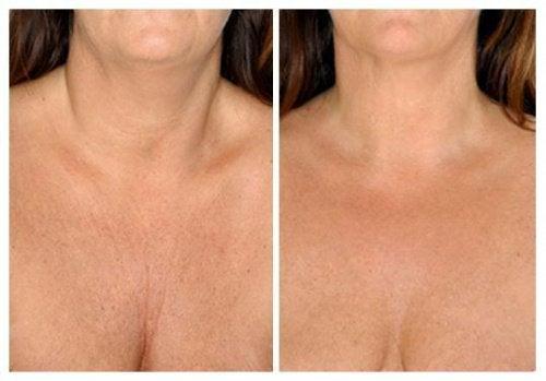 Naturlige hudpleiebehandlinger for halsen din