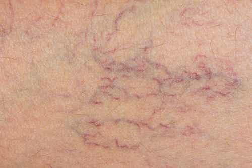 Forbedre blodsirkulasjonen for naturlig behandling av åreknuter
