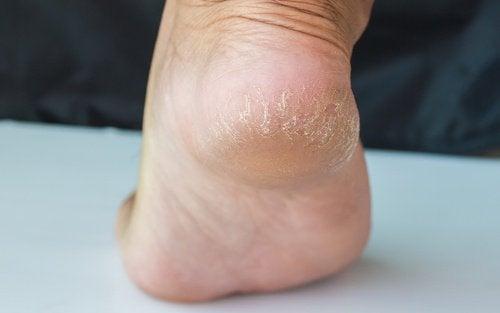 Behandlinger for å lindre sprukne hæler på et par dager