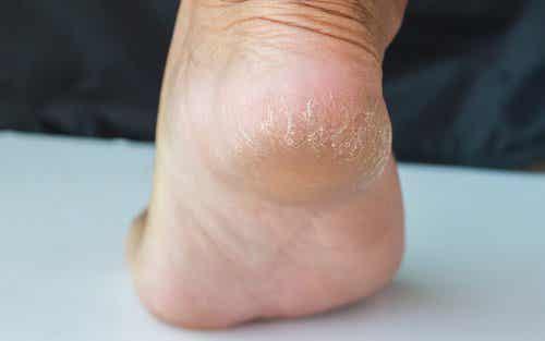 Behandlinger for å lindre sprukne hæler