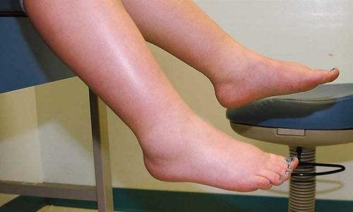 Hvordan bekjempe væskeansamlinger i beina