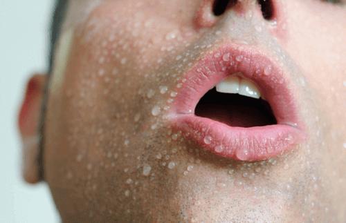 Overdreven svetting er et ubehagelig problem