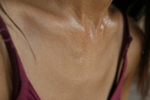 Det finnes gode råd mot overdreven svetting