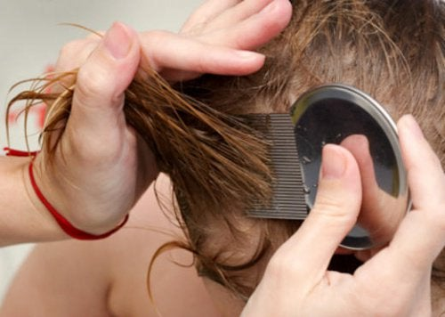 7 naturlige og effektive behandlinger mot lus og luseegg - hovedbilde