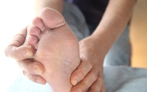 Fotsopp - forebygging og behandling - hovedbilde