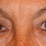 Naturlige behandlinger for slappe øyelokk