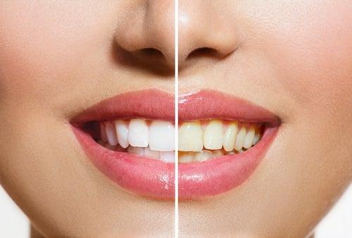 salt kan brukes til tannbleking