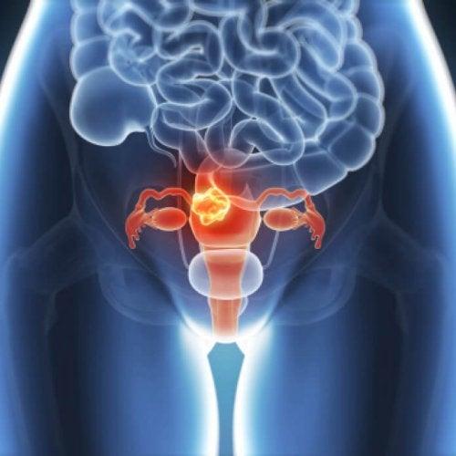 Endometriose, en stille sykdom: Risikoer og symptomer