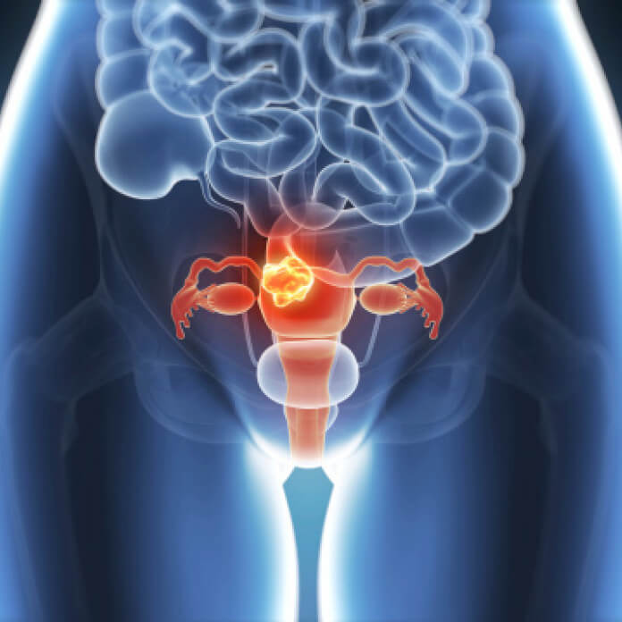 1-endometriose