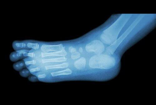 Røntgenbilde av fot