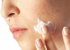 skin-impurities