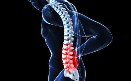 3-kreft-i-ryggraden
