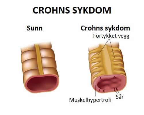 Behandling av Crohns sykdom med riktig kosthold