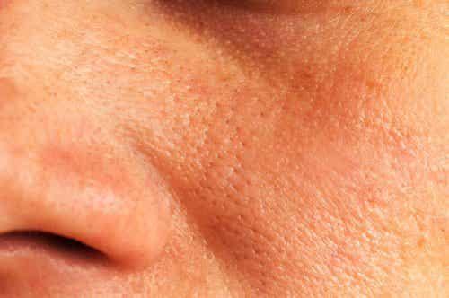 Naturlige behandlinger mot forstørrede porer