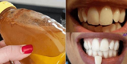 Blek tennene dine med en 100% naturlig ingrediens