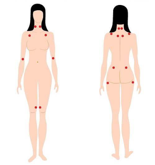 Varseltegn på fibromyalgi