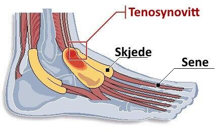 tenosynovitt i fot