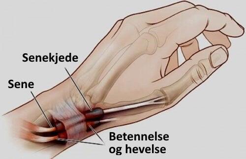 Tenosynovitt: Betennelse i hender og føtter