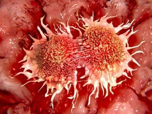 frossen-sitron-anti-kreftbehandling
