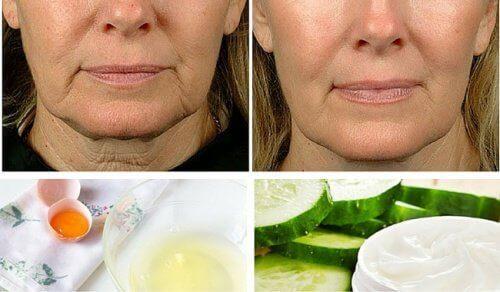5 hjemmebehandlinger for å bekjempe hengende hud i ansiktet