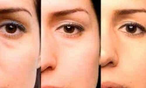 Råd for å bli kvitt poser under øynene