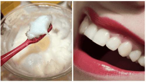 Kokosolje for munnhelsen: Bli kvitt orale helseproblemer