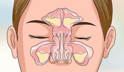 6 tips for å åpne en tett nese på minutter