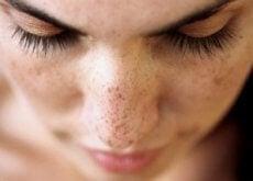 6-naturlige-behandlinger-for-a%cc%8a-bli-kvitt-morke-flekker