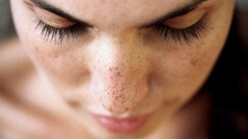 6 naturlige behandlinger for bli kvitt mørke flekker i ansiktet
