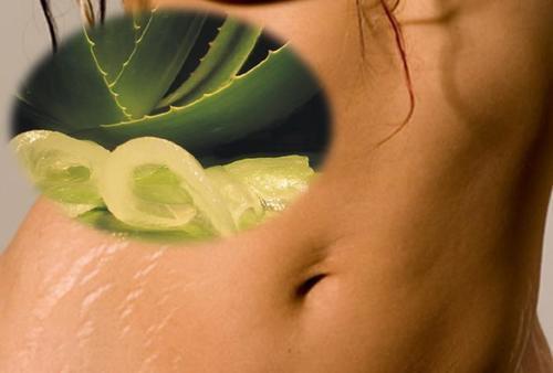 6 naturlige remedier for å redusere strekkmerker