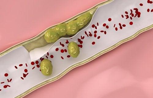 9 matvarer du bør spise for å rense blodårene dine