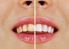 mat-som-misfarger-tennene-hovedbilde
