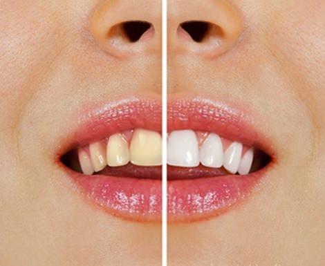 Mat som misfarger tennene