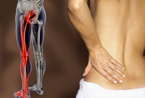 Hvordan bli kvitt smerter i isjiasnerven med mosjon