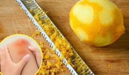 Bruk  av  sitronskall  for  behandling  av  leddsmerter