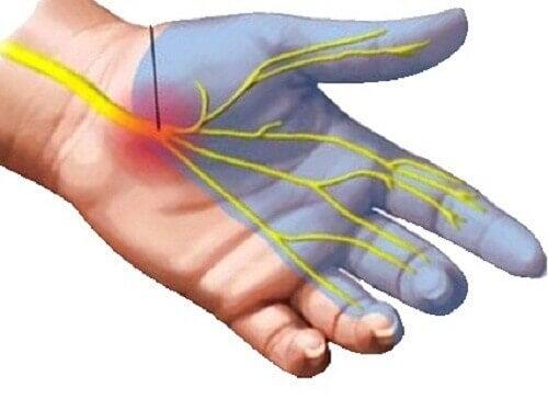 7 midler for å lindre smerter ved karpaltunnelsyndrom
