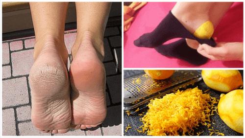Bruk sitronskall for å ta vare på føttene dine
